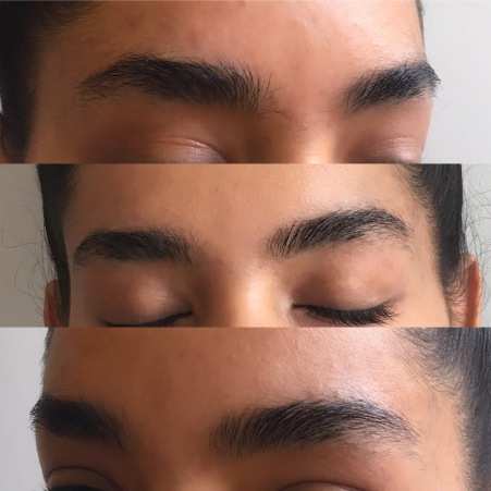 Two weeks later with RapidBrow daily use