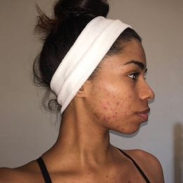 Side profile of active acne (October 2016)